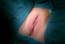 Labioplastia de reducción, una cirugía estética frecuente