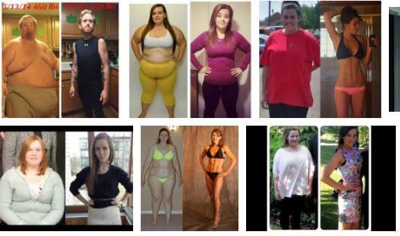 obesidad mórbida antes y después