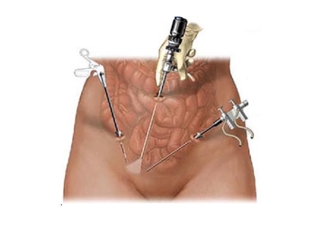 laparoscopia ginecológica