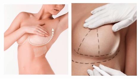 La Mastopexia la cirugía de elevación de mamas