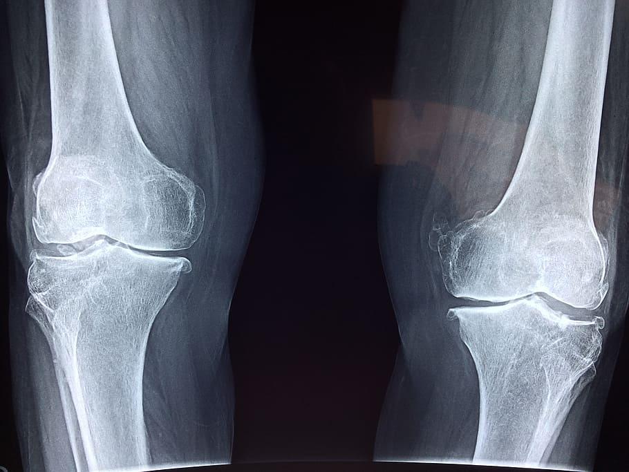 Ácido hialurónico para la artrosis en la rodilla. Radiografía
